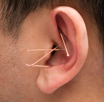 Acupuncture hearing